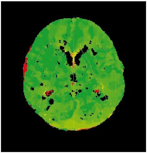 Obr. 1b. Pooperační snímky stejného pacienta – symetrický nález TTP.