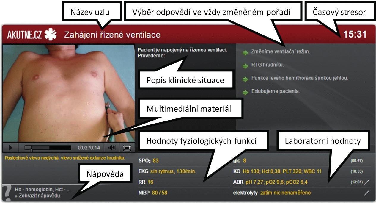 Popis uzlu interaktivního algoritmu