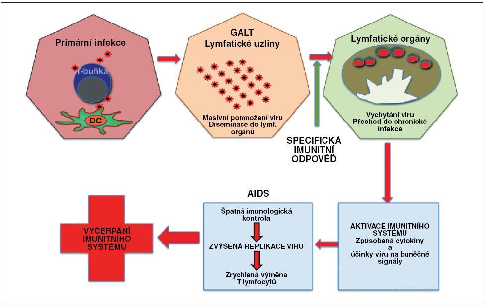 Obr. 2. Postup šíření HIV v jednotlivých fázích infekce Při primární infekci se nejprve virus replikuje lokálně a následně – po diseminaci do lymfatických orgánů – dochází k jeho masivnímu pomnožení. Imunitní odpověď zbrzdí replikaci viru, který může téměř zmizet z cirkulace, je vychytán v lymfatických orgánech a infekce přechází do chronické fáze. Postupně dochází ale ke zvýšené chronické aktivaci imunitního systému (vlivem přítomnosti viru a aberantní sekrecí cytokinů), která má za následek zrychlující se pomnožování viru. Ten se vymkne imunologické kontrole a jeho vyšší hladiny mají za následek depleci zvyšujícího se množství lymfocytů (přímo – infekcí, i nepřímo – úhynem neinfikovaných buněk díky chronické aktivaci a aberantním signálům), které následně organismus nezvládá doplňovat. Výsledkem je nekontrolované množení viru a vyčerpání imunitního systému.