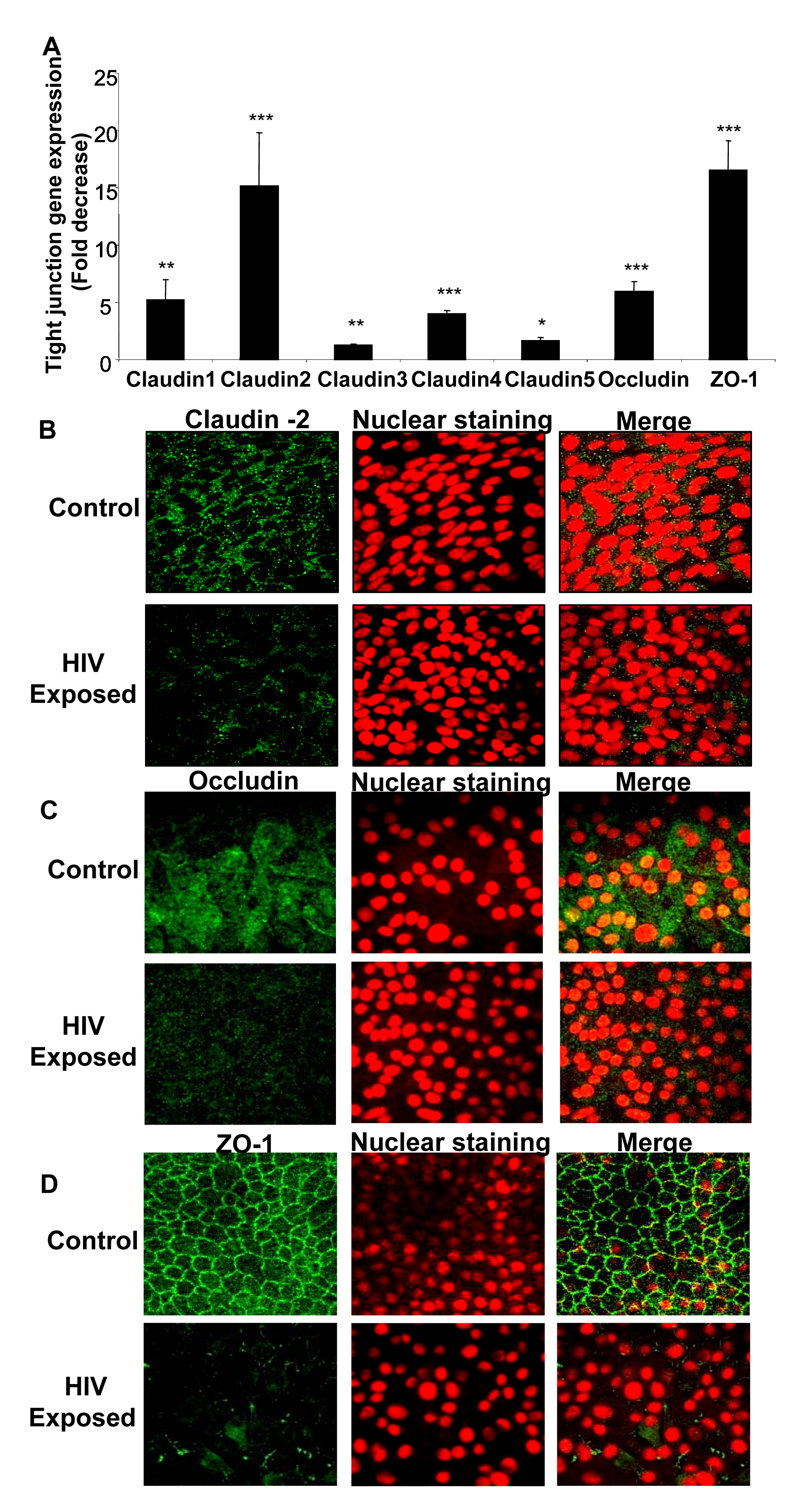 Confluent monolayers grown from primary endometrial epithelial cells were either mock-treated or exposed to HIV-1 (ADA strain, 10<sup>6</sup> infectious viral units/ml, p24 280ng/ml) for 8 hours.