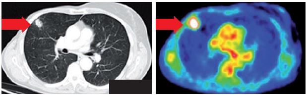 PET/CT ložisko ve středním laloku.
