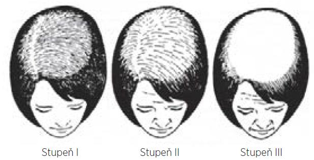 Klasifikace dle Ludwiga: