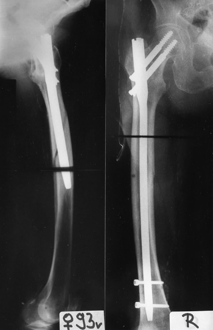 Vliv zakřivení femuru na zavádění hřebu: a – pertrochanterická zlomenina, patrný široký dřeňový kanál, ale výrazněji zakřivený; b – rtg v ap projekci po osteosyntéze hřebem o průměru 13 mm; c – pooperační rtg v axiální projekci ukazuje kolizi mezi hřebem a tvarem dřeňového kanálu, jehož výsledkem byla zlomenina diafýzy femuru; d – provedena reoperace, delším, tenčím, anatomicky tvarovaným hřebem Fig. 14: Effect of femur curvature on insertion of the nail: a – pertrochanteric fracture, a wide medullary canal with a more marked curvature; b – radiograph in ap view after internal fixation by a nail with 13mm diameter; c – postoperative radiograph in axial view shows mismatch between the nail and the shape of the medullary canal, which resulted in fracture of the femoral shaft; d – reoperation performed with a longer, thinner, anatomically shaped nail.