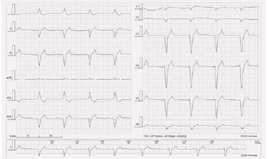 EKG stimulace z hrotu pravé komory bipolární.