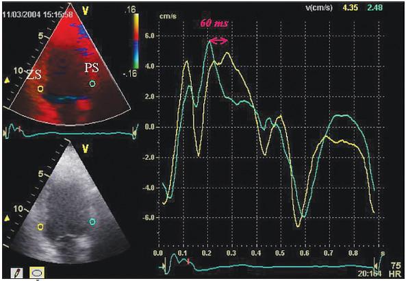 Obr. 2. Časově rychlostní křivky a intraventrikulární zpoždění po resynchronizaci. Stejná projekce a časově rychlostní křivky vytvořené ze stejných míst levé komory jako na obr. 1. Intraventrikulární zpoždění pokleslo ze 150 na 60 ms, bylo dosaženo částečné resynchronizace.