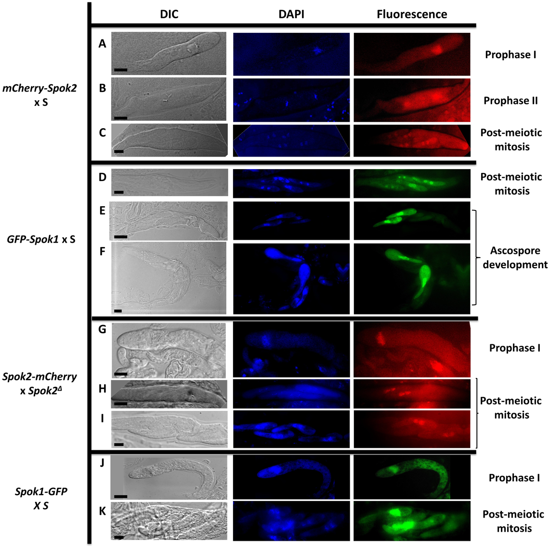 Localization of Spok protein in developing asci.