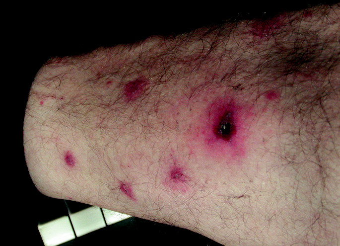 Vyrážka a eschara u afrického klíšťového tyfu (infekce Rickettsia Africae)