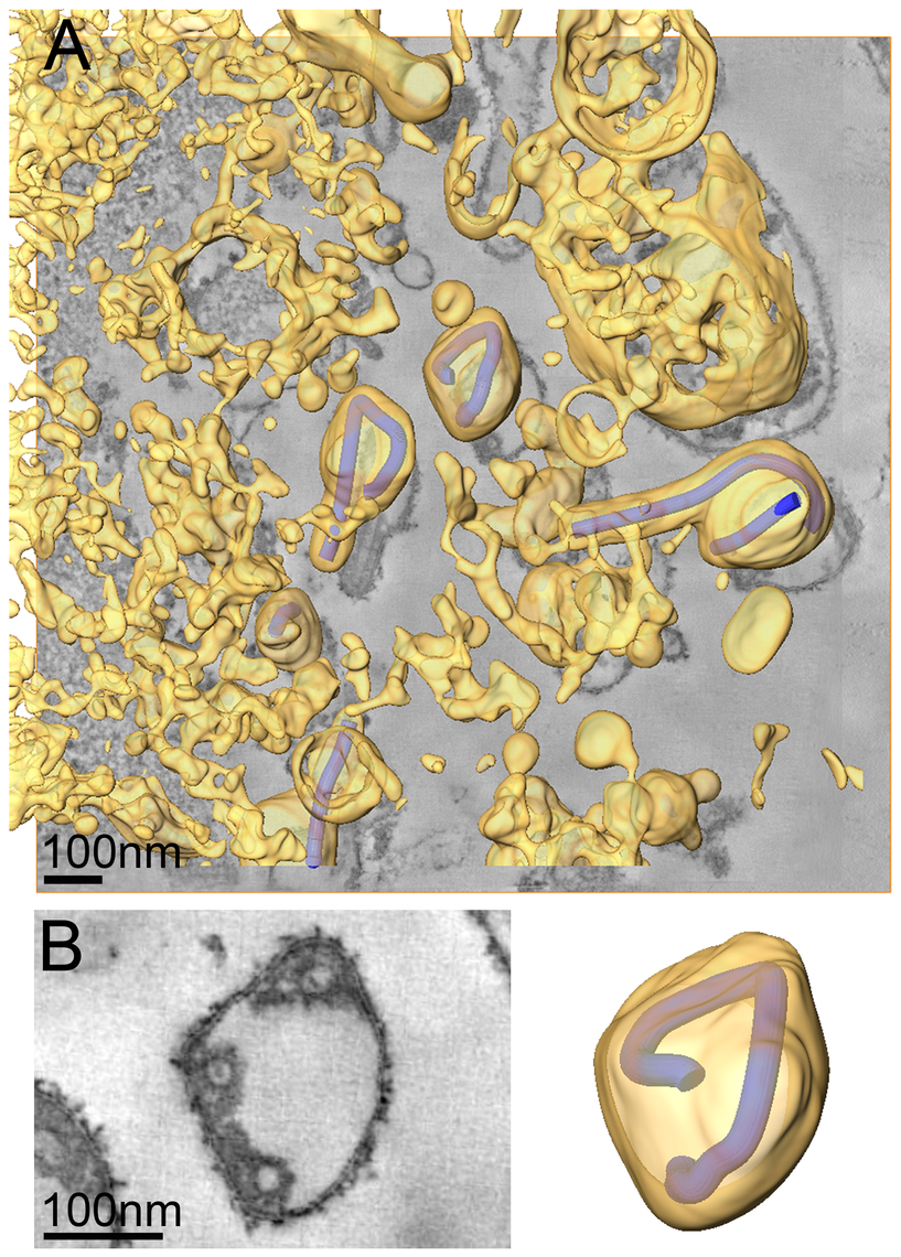 Release and spherical morphology of MARV particles after prolonged infection.