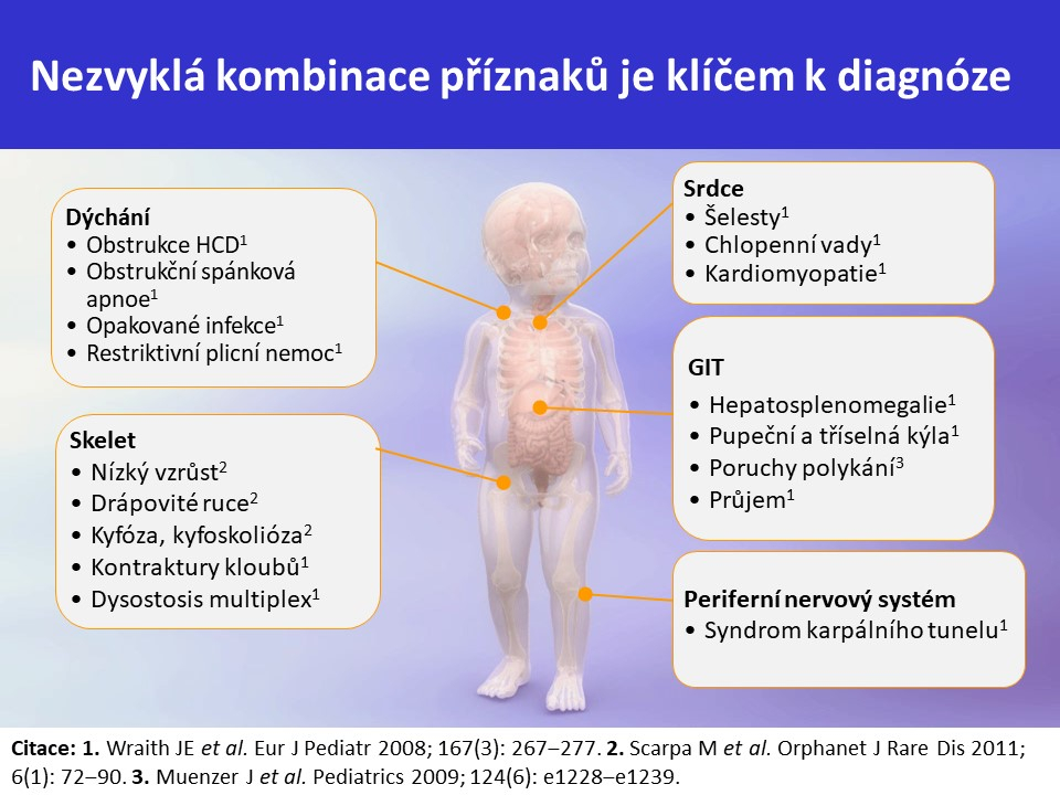 Mukopolysacharidóza typ II – Hunterův syndrom - 15
