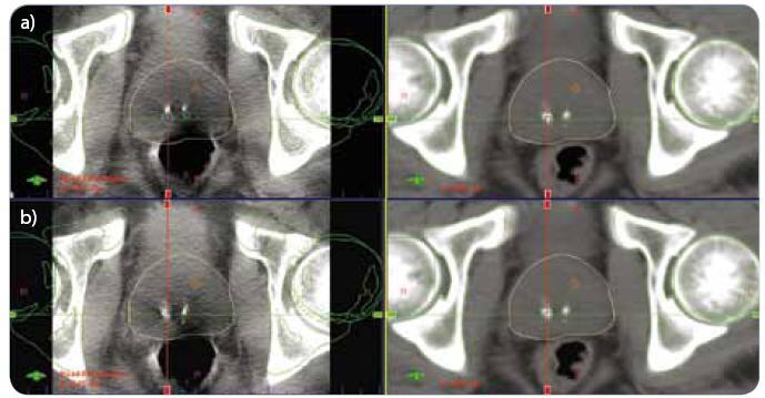 CBCT – registrace pozice skeletu pánve (a), registrace pozice prostaty (b). (a) vlevo aktuální CBCT, vpravo refrenční plánovací CT (b) vlevo aktuální CBCT, vpravo refrenční plánovací CT CBCT – kilovoltážní CT kónickým svazkem