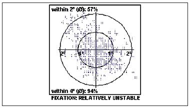 Excentrická nestabilní fixace před operací IMD