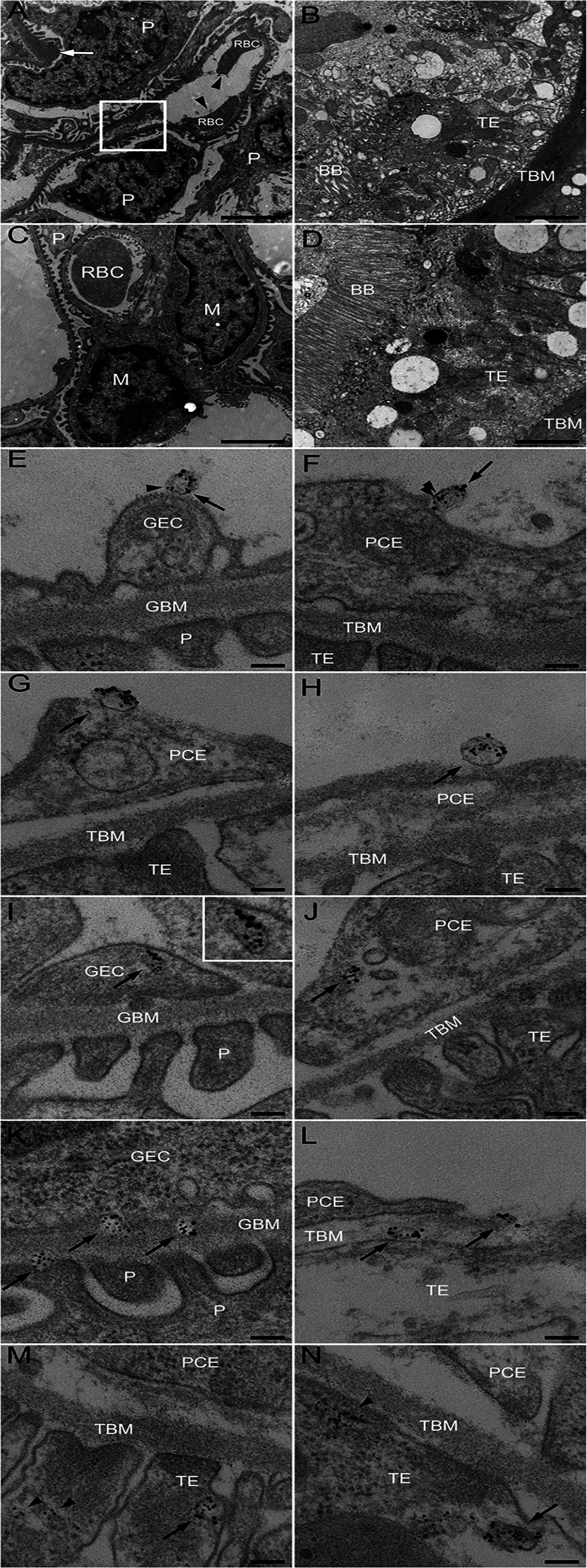 Ultramorphology of the renal cortex in mice infected with <i>E. coli</i> O157:H7.