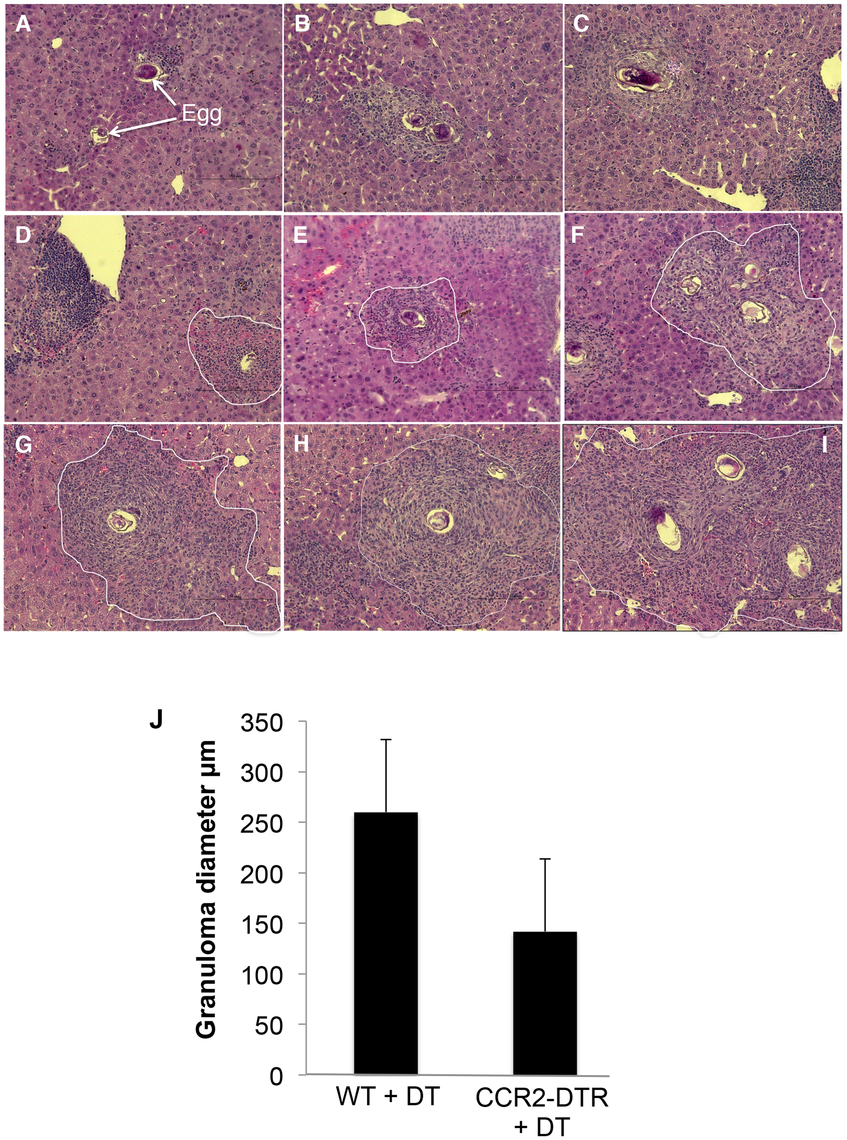 Depletion of monocytes results in reduced granuloma formation.