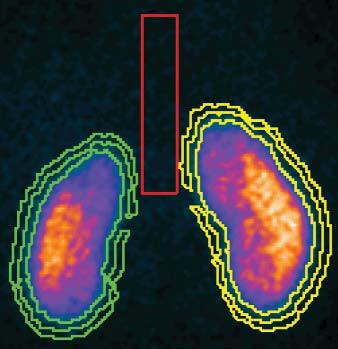 Obr. 9c. Obraz kontrolního statického scintigrafického vyšetření ledvin.