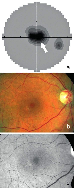 Statická automatická perimetrie pravého oka a) s centrálním výpadem zorného pole (označen šipkou) z pohledu pacienta. Fotografie očního pozadí pravého oka z pohledu lékaře dokumentuje b) prstenec zašednutí okolo normální fovey, temporálně přítomno ložisko depigmentace, c) stejný nález na bezčerveném snímku