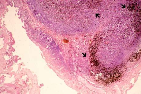 Melanotická metastáza maligního melanomu v bulbu duodena – šipky označují depozita melaninu (sekce, barvení hematoxylinem-eozinem, zvětšeno 40×). Fig. 5. Melanotic metastasis of malignant melanoma of duodenal bulb – arrows indicate deposits of melanin (section, hematoxylin-eosin staining, enlarged 40×).