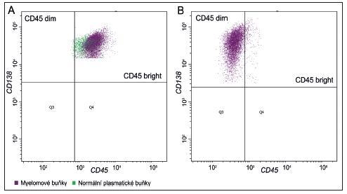 """Vyšetření průtokovou cytometrií, exprese CD45 u plazmocytů Obr. 1A Populace patologických plazmatických buněk s vyšší """"bright"""" expresí znaku CD45 (fialové- plasmatické buňky, zeleně lymfocyty) """"bright"""" skupina.  1B Populace plazmocytů s nižší """"dim"""" expresí CD45 znaku –""""dim"""" skupina."""