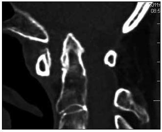 Kraniální migrace zubu čepovce na sagitální rekonstrukci CT vyšetření.