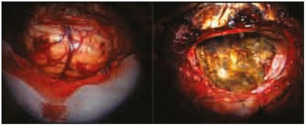 Peroperační snímky, vlevo před resekcí, vpravo po resekci.