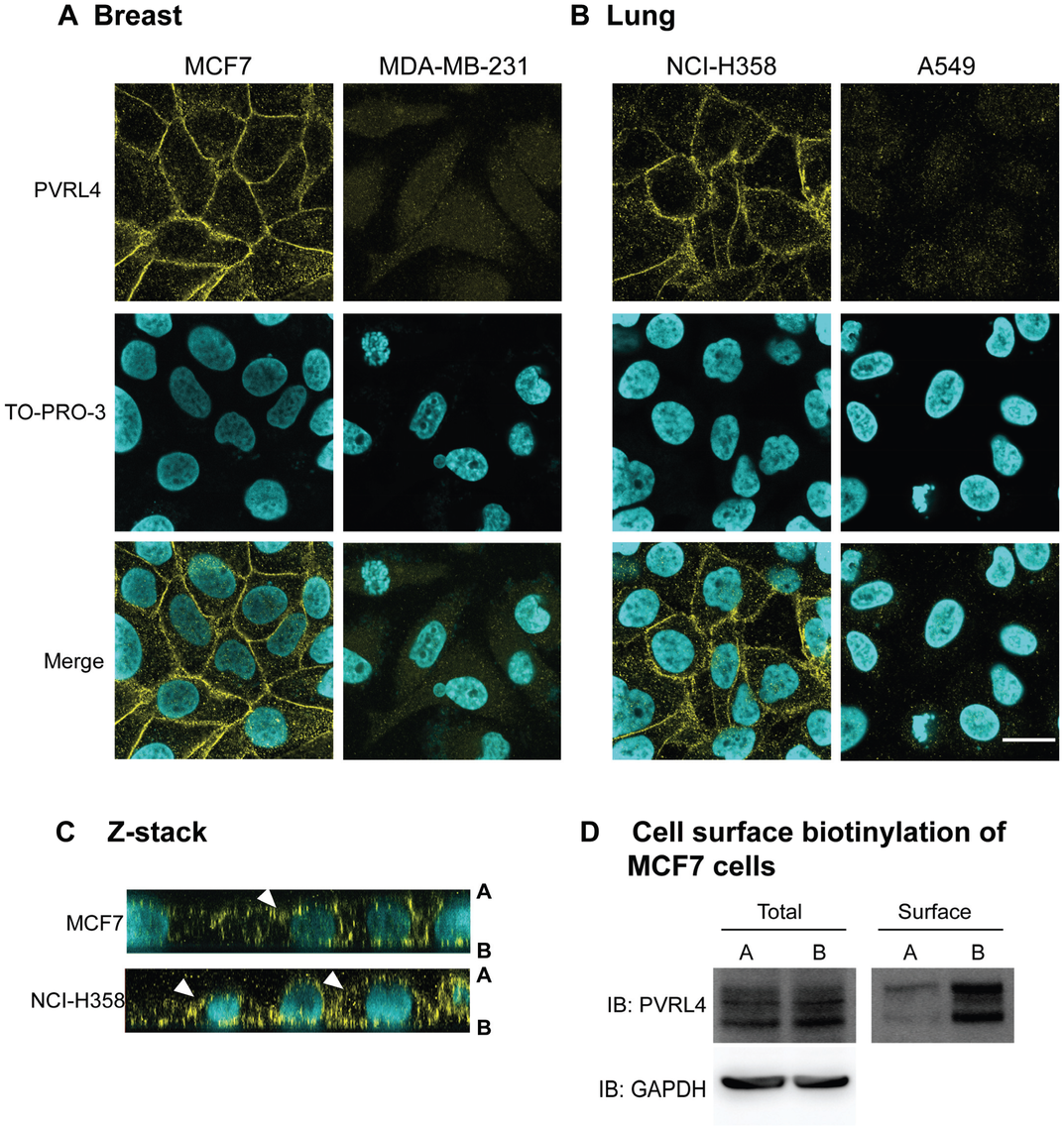PVRL4 is localized to both the apical and basolateral surfaces in MCF7 and NCI-H358 cancer cells.