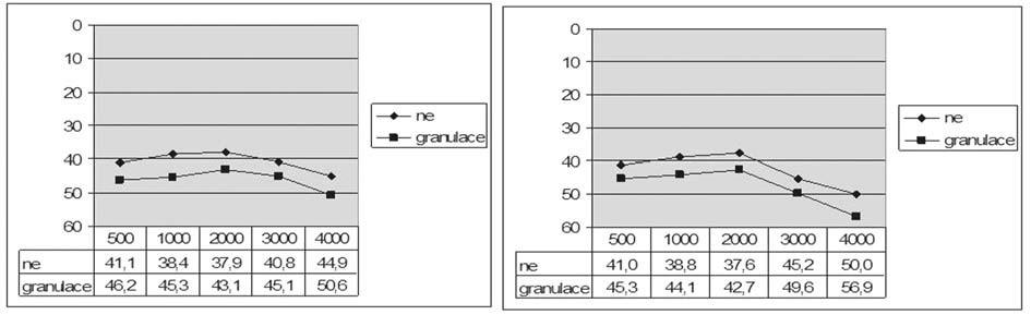 Graf 8a. Vzdušné vedení před a po operaci podle přítomnosti granulací ve středouší.
