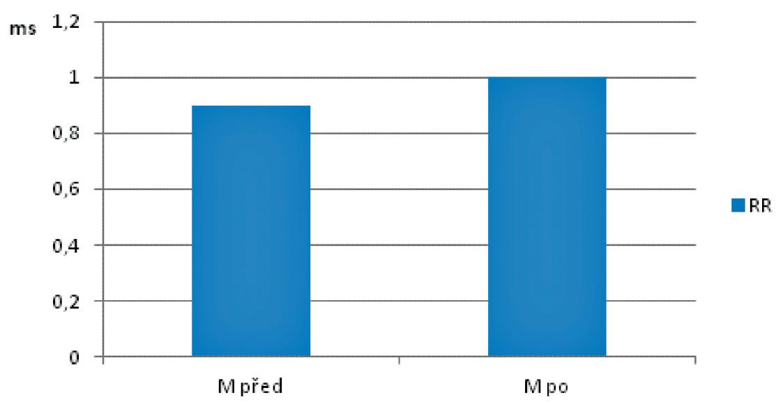 Trvání R-R intervalů na počátku (M před) a na konci (M po) studie v souboru pacientů s ischemickou srdeční chorobou po aortokoronárním bypassu (n=30) v pozici opakovaného lehu ortoklinostatické zkoušky.