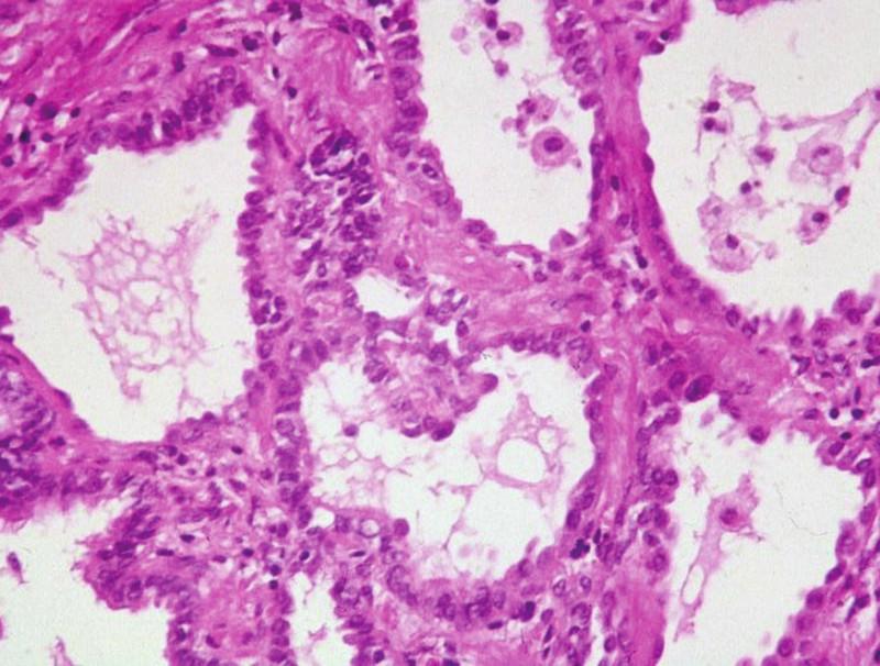 Změny ve smyslu intersticiální fibrózy po proběhlém difúzním alveolárním poškození. Převažují pneumocyty II. řádu, které mají vysokou regenerační schopnost. HE, 120krát
