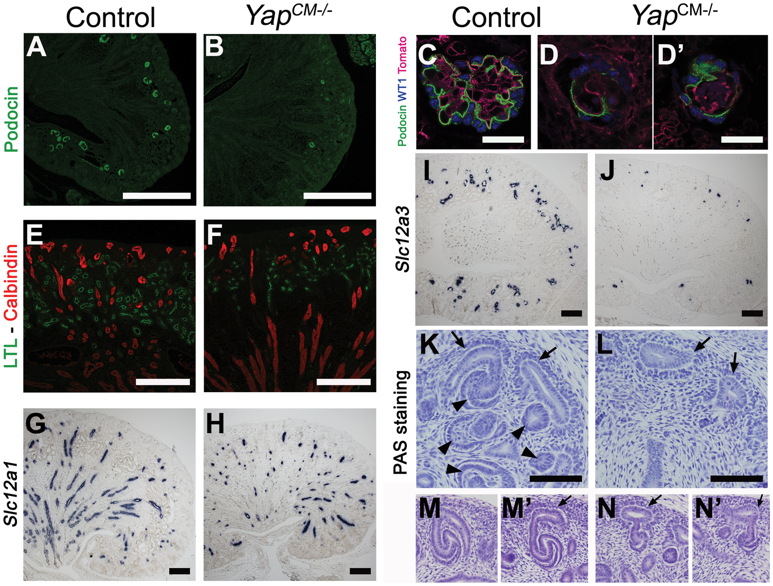 Loss of CM-derived epithelial structures and abnormal morphogenesis in <i>Yap</i> mutants.