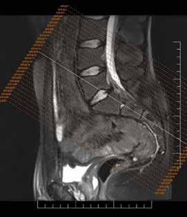MRI sakroiliakálnych kĺbov – semikoronárne rezy paralelne orientované s pozdĺžnou hranou os sacrum. Archív autora