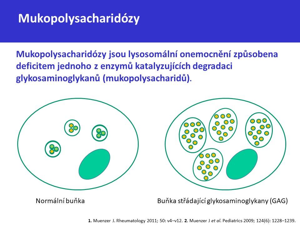 Mukopolysacharidóza typ II – Hunterův syndrom - 2
