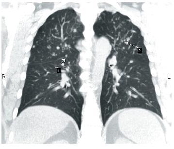 Uzlíky na interlobiích č. 1 a perivaskulárně s predilekčním postižením horních plicních polí