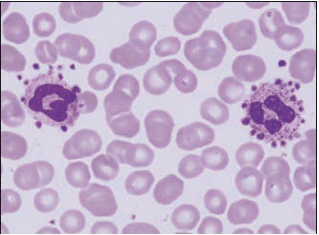 Mikrofotografie satelitizmu trombocytů při pseudotrombocytopenii.
