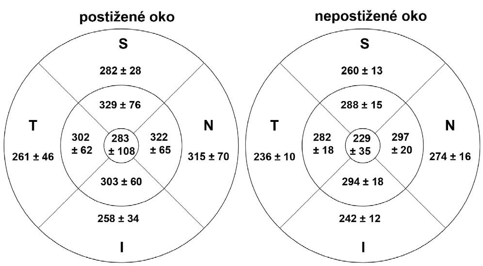 Tloušťka vrstvy nervových vláken v makule v akutní fázi AION v jednotlivých oblastech u postiženého a nepostiženého oka (S = superior = horní, I = inferior = dolní, N = nasal = nazální,T = temporal = temporální)