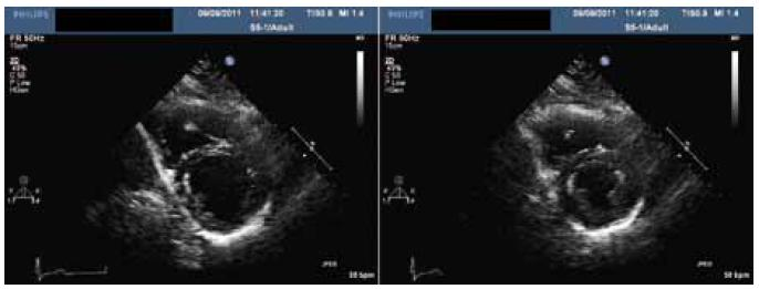 Kontrolní echokardiografie, levá komora v krátké ose a) v diastole b) v systole.