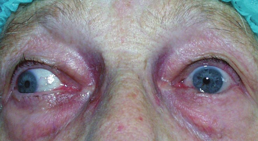 Entropium a trichiáza dolního víčka vlevo před operací