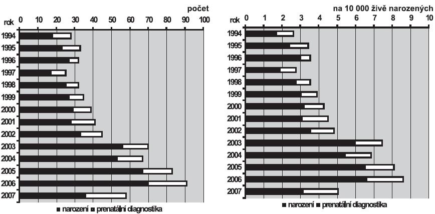 a. Absolutní počty cystické dysplazie ledvin v ČR, 1994 – 2007  b. Relativní incidence cystické dysplazie ledvin v ČR, 1994 – 2007