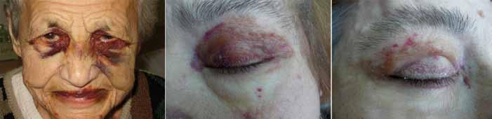 Obr. 8, 9 a 10. Amyloid se může ukládat v cévách a zvyšovat jejich fragilitu. V oblasti očí jsou cévy uloženy v poměrně řídkém vazivu, a snad proto při zvýšení žilního tlaku dochází k rupturám drobných  kapilár a cévek právě v oblasti očí. Oboustranné hematomy dolních a horních víček tedy nemusejí být jenom projevem fraktury lební baze, ale mohou být první zřetelnou známkou amyloidózy. Na obr. 7 jsou již nepřehlédnutelné hematomy, na obr. 8 a 9 jsou přítomny pouze drobné hematomy u pacientky s dominující amyloidózou srdce.
