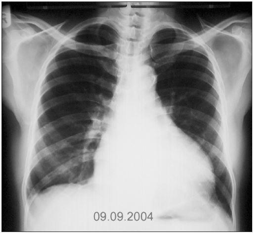 RTG srdce a plic (9. 9. 2004): Srdeční stín hraniční velikosti, hrotem do medioklavikulární čáry, levostranný výpotek regredoval, ostatní nález stacionární.