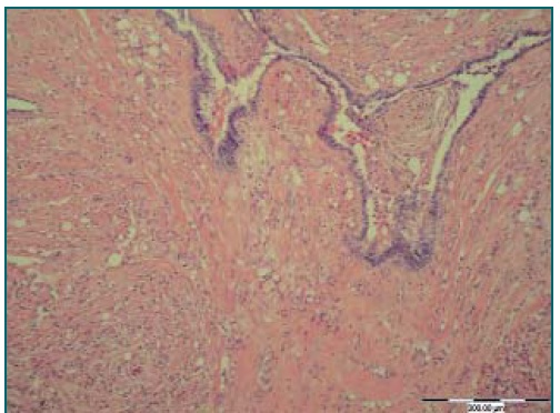 Oblast rete testis s infiltrací adenomatoidního nádoru. Barvení H&E, zvětšení 100×.