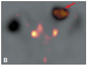 <i>SPECT fúze obrazů s denaturovanými erytrocyty a s Octreoscanem</i>