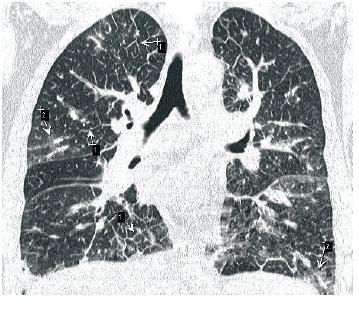 Churd-Strauss – četné septální linie č.1 a č. 2, mléčné sklo až kondenzace plicního parenchymu