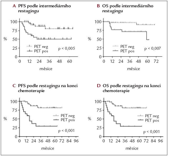 Pravděpodobnost doby do progrese (PFS) a celkového přežití (OS) podle výsledku FDG-PET (PET neg – negativní, PET poz – pozitivní) u všech pacientů.