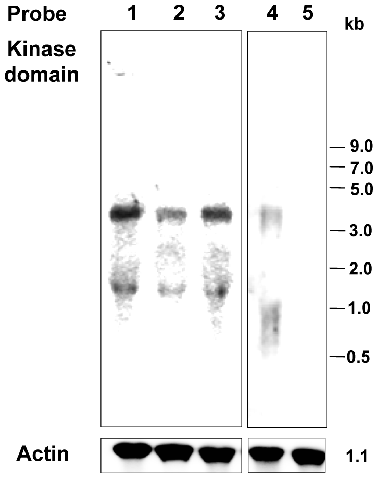 Expression of EhTMKB1 under different growth conditions.
