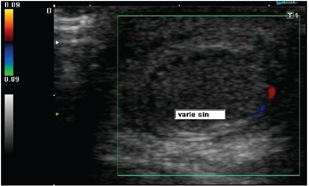 Ultrazvukové vyšetření barevným Dopplerem levého varlete: varle je homogenní, při dolním pólu je patrný signál zachovalé perfúze Fig. 2: Doppler ultrasonography of left testicle: tissue echostructure is homogeneous, signs of preserved perfusion in the lower pole are detected