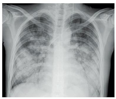 Systémový lupus erythematodes – Difuzní alveolární hemoragie provázená akutním respiračním selháním u 19leté dívky