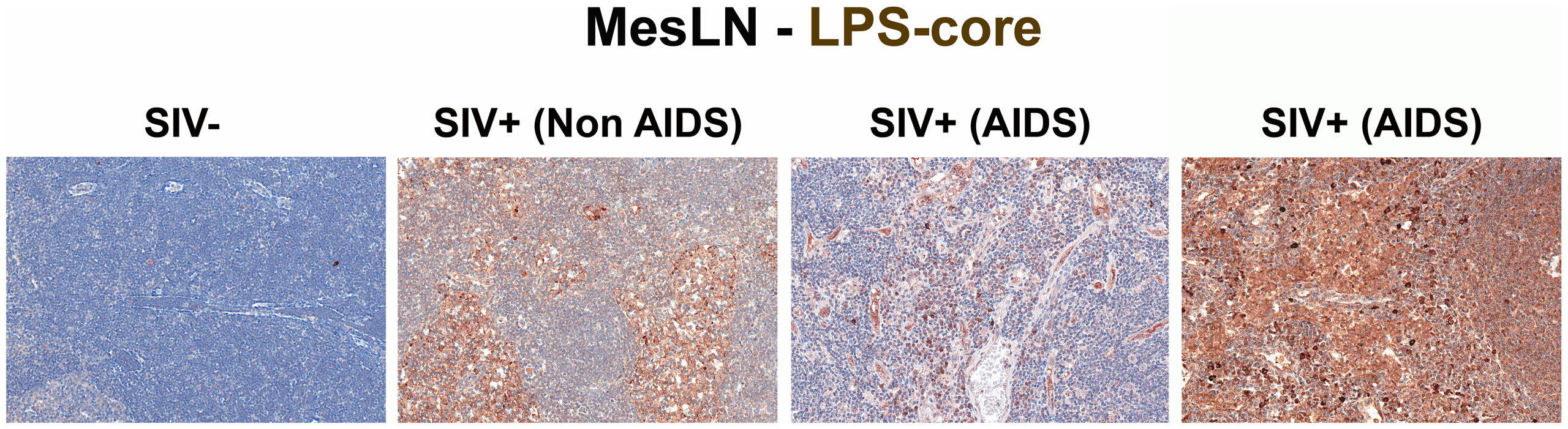 Identification of microbial translocation in gut draining MesLN of chronically SIV<sup>+</sup> RMs.