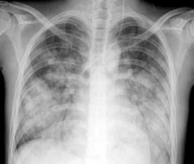 Difuzní alveolární hemoragie u 19leté nemocné se SLE a sekundárním APS