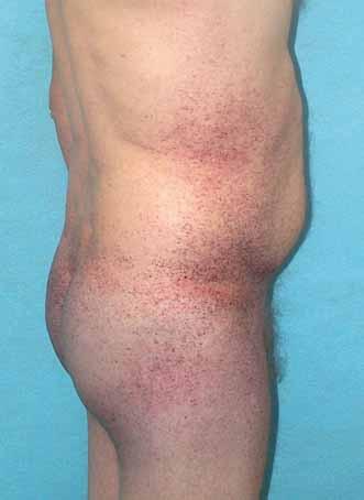 Angiokeratomy, pacient s Fabryho chorobou. Fig. 3. Angiokeratomas, Fabry disease patient.
