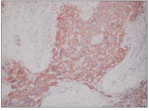 Sarkóm folikulových dendritických buniek, CD21<sup>+</sup> (40krát).