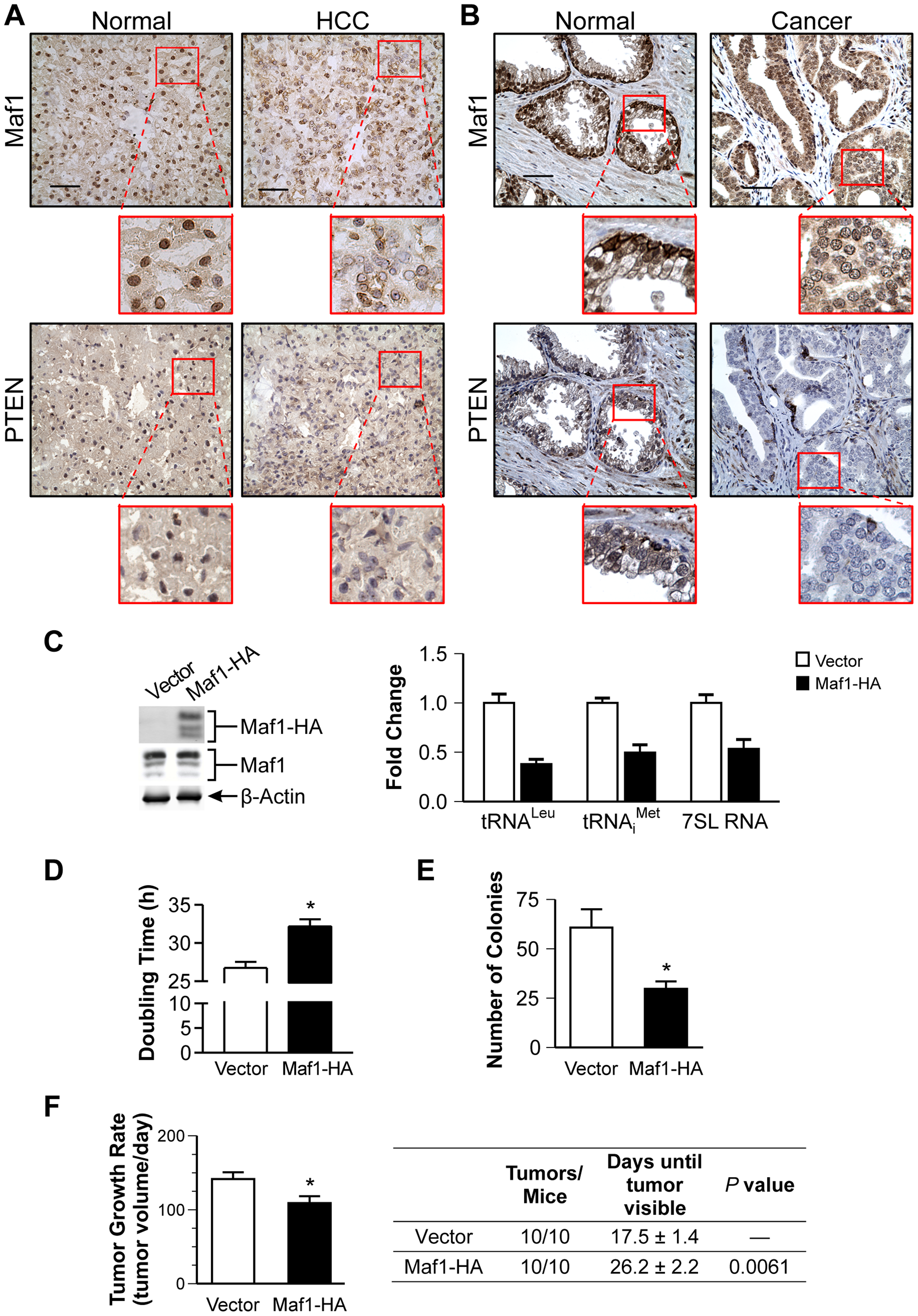Increased Maf1 expression suppresses cellular transformation and tumorigenesis, consistent with its diminished expression in human cancer tissues.